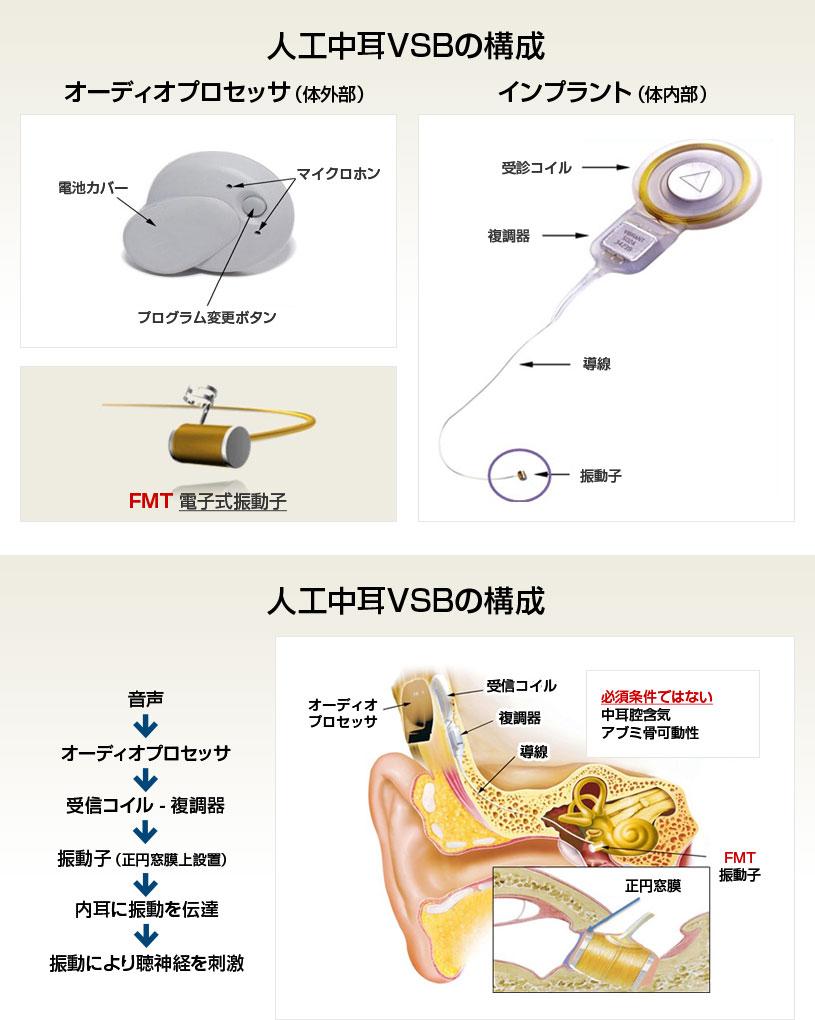 人工中耳VSBの構成